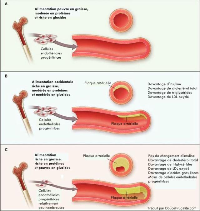 plaque artérielle, alimentation et graisse